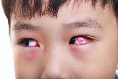 child-pink-eye