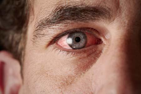 irritated-eyes-sm